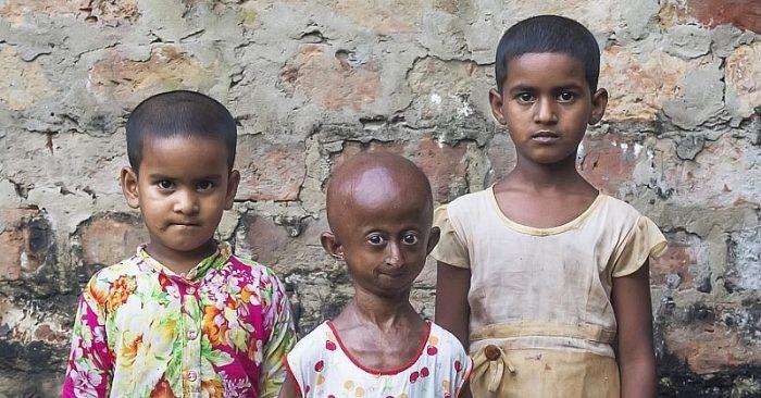 Bé gái 10 tuổi ở Bangladesh có khuôn mặt như bà lão do hội chứng Progeria hiếm gặp