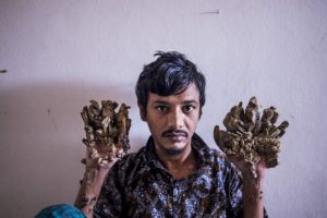 'Người cây' Bangladesh xin cắt cụt hai tay bởi quá đau đớn vì bệnh tật