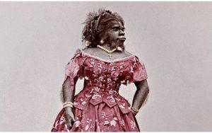 Cuộc đời bất hạnh của người đàn bà xấu xí nhất thế giới: Chết còn bị trưng bày để thu tiền