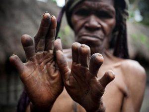Những phong tục kỳ lạ của các bộ tộc trên thế giới
