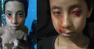 Kỳ lạ mồ hôi và nước mắt của một bé gái 8 tuổi có màu đỏ như máu