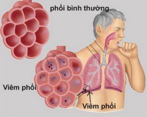 Món ăn tốt cho người bệnh phổi
